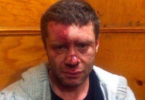 В Одессе под руководством Марка Гординеко жестоко избили человека