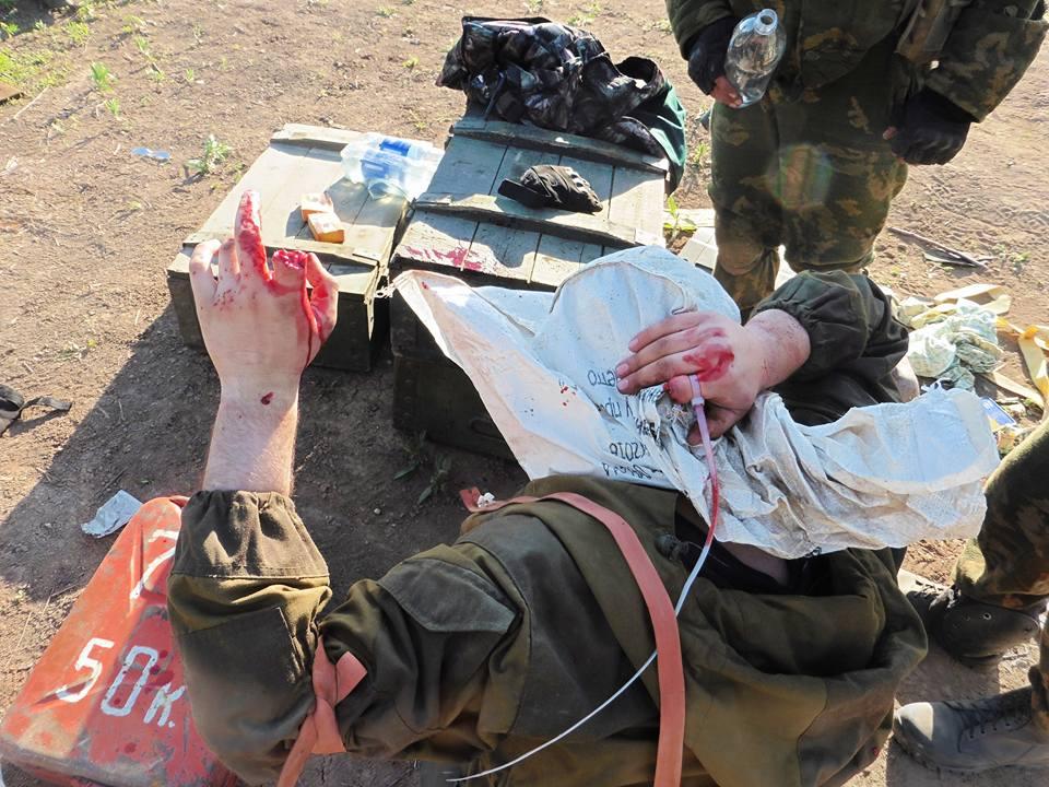 Боевики правого сектора отрубили пальцы ополченцу