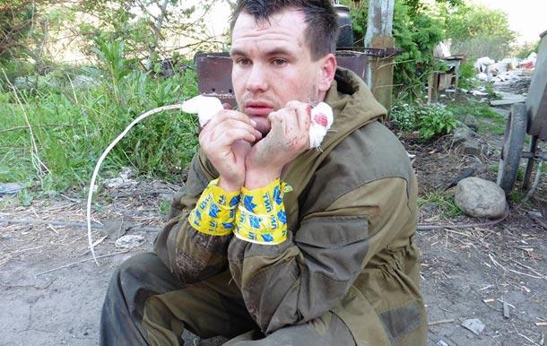 Преступления Правого Сектора - пленному ополченцу отрубили пальцы