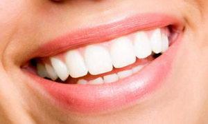 Голливудская улыбка и стоматология